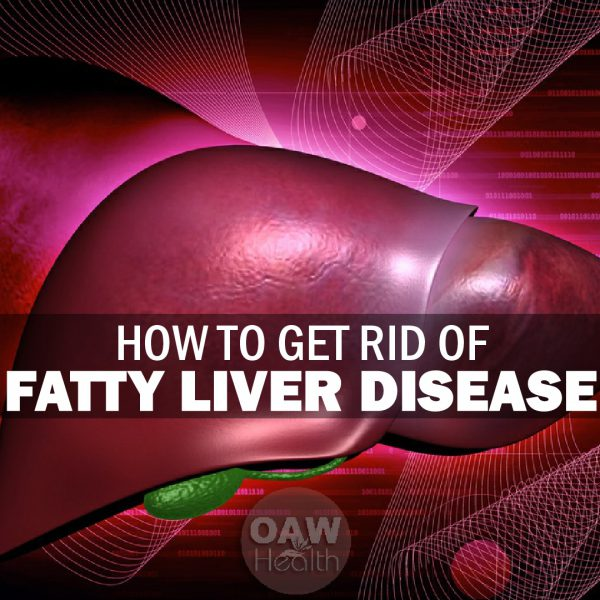 How to Get Rid of Fatty Liver Disease