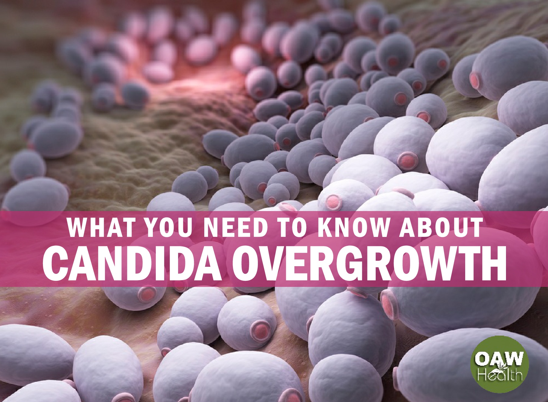 What You Need to Know about Candida Overgrowth