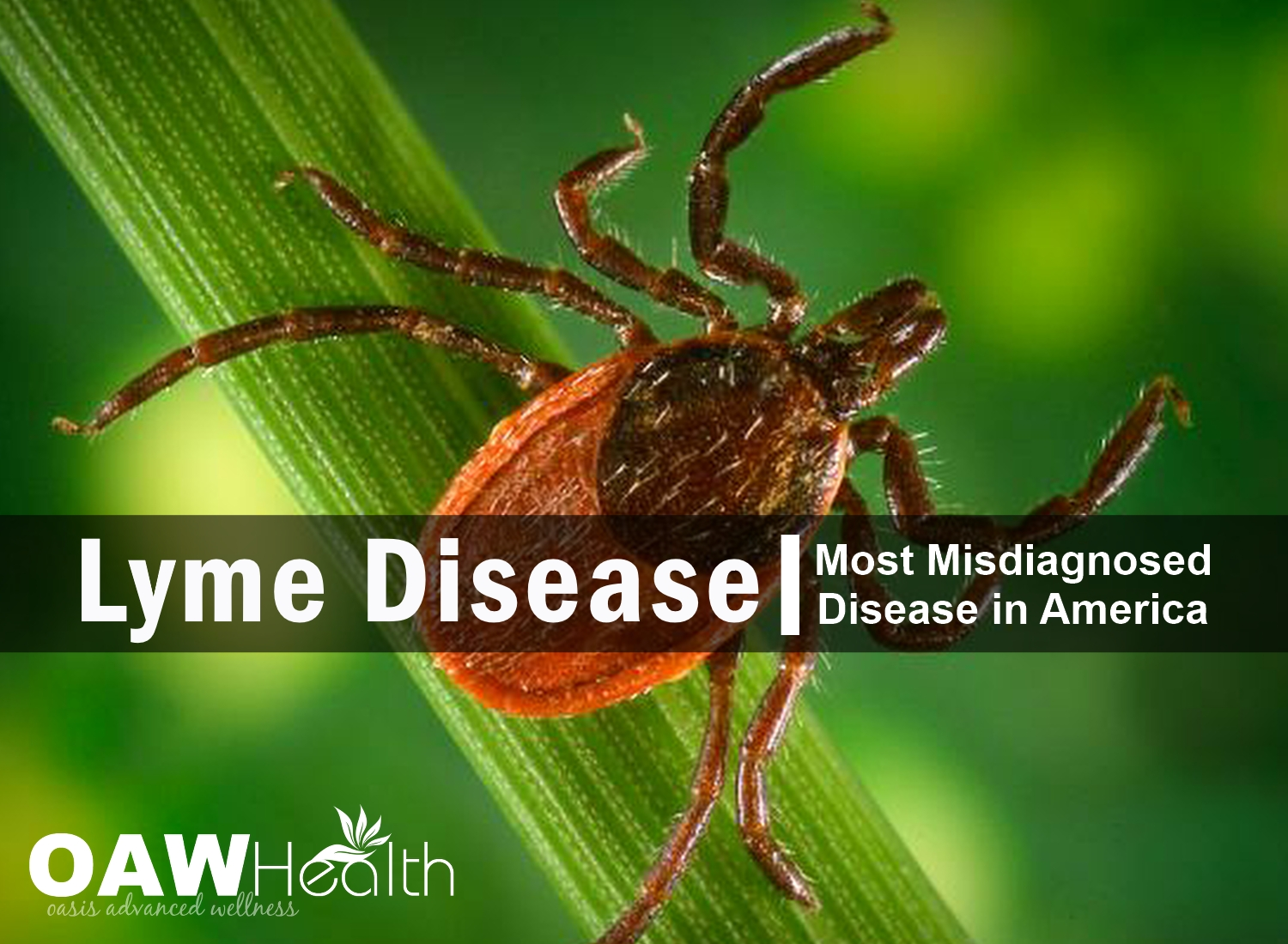 Lyme Disease – The Most Misdiagnosed Disease in America
