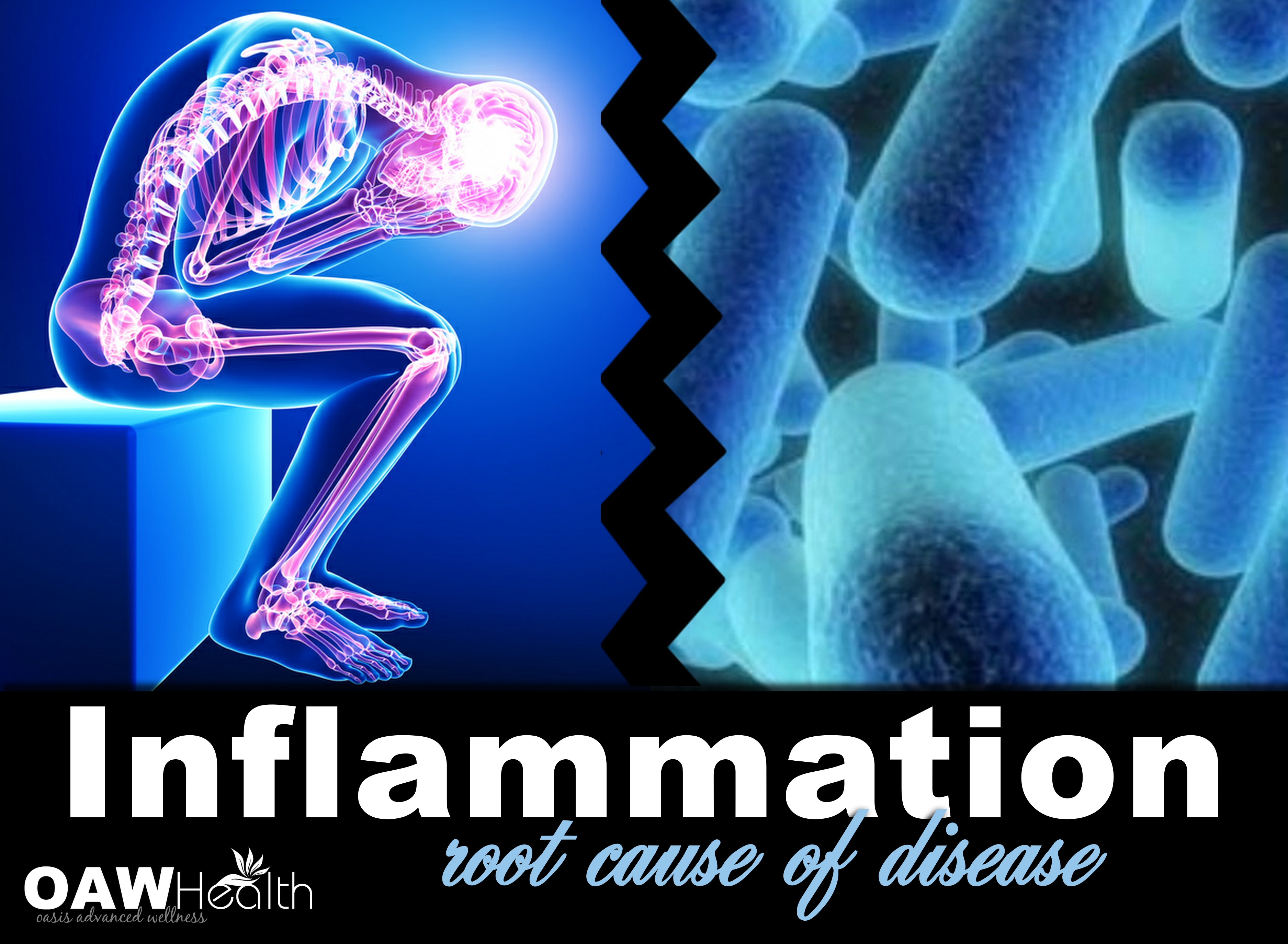 Inflammation – Root Cause of Disease