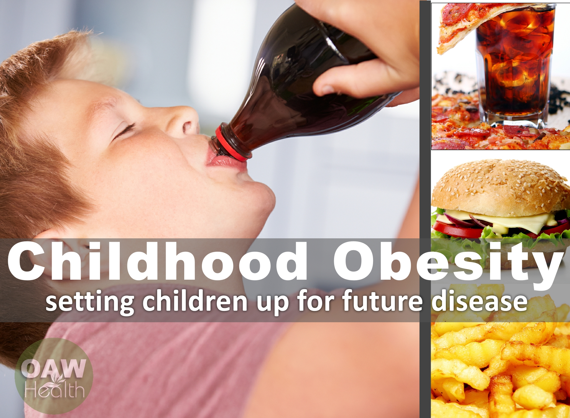 Childhood Obesity – Setting Children Up for Future Disease