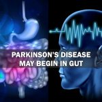 Parkinsons Disease May Begin in Gut