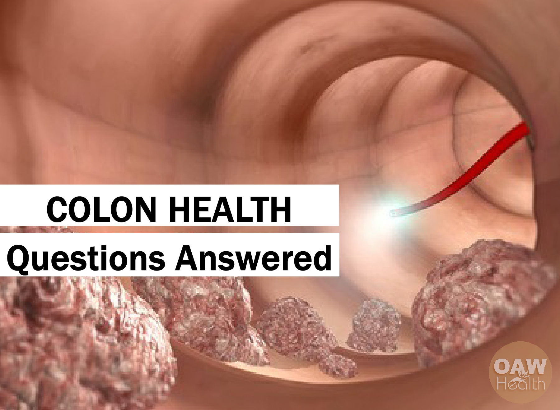 Colon Health Questions Answered