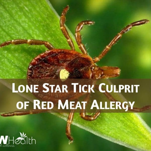 Lone Star Tick Culprit of Red Meat Allergy